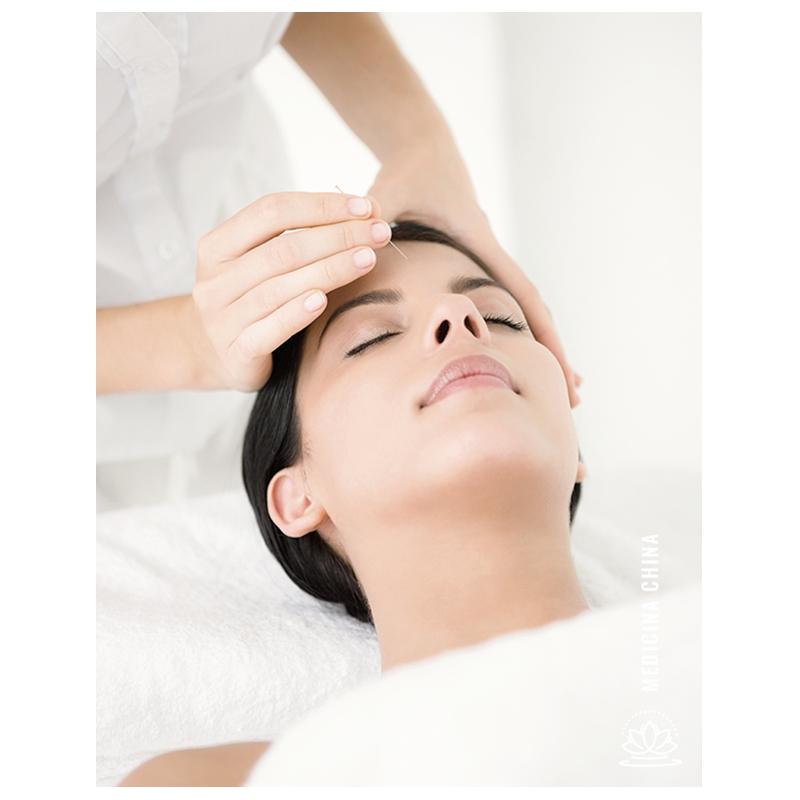 Tratamiento de acupuntura Estética-Cosmética